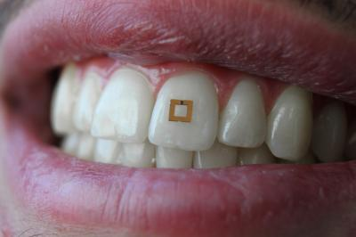 tooth sensor calorie counter tech for weight loss