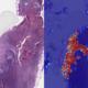 google-ai-creates-lyna-to-detect-breast-cancer-tumor