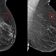 mit-csai-ai-breast-cancer