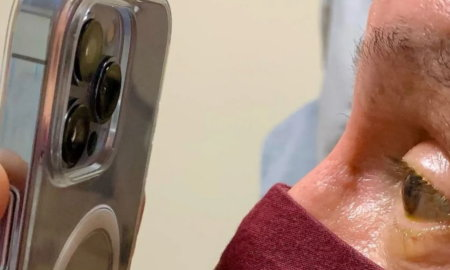 iphone 13 eye checkup